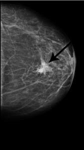 Profilaktyka onkologiczna 3